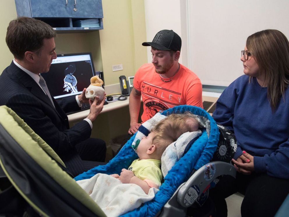 Bentley and his parents meet with Dr. John Meara, Plastic Surgeon-in-Chief, Boston Children's Hospital.