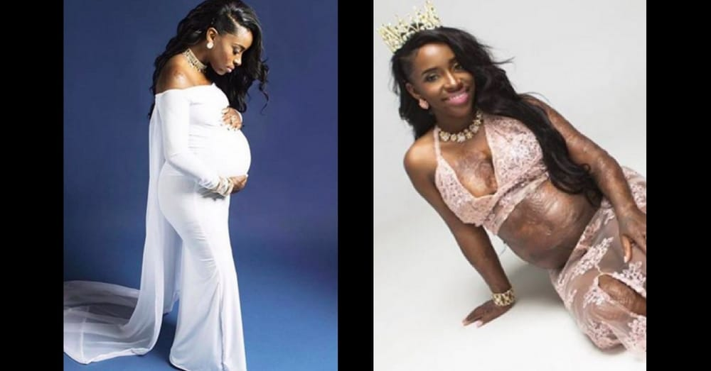 Burn Victim Shares Inspiring Maternity Pictures 15 Years After Terrifying Explosion