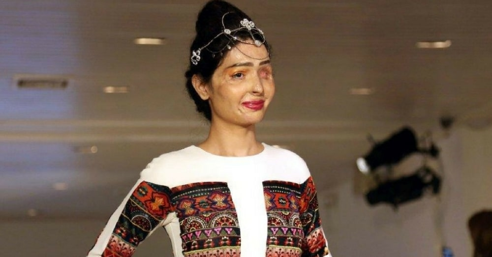 Acid Attack Survivor Stuns Crowd As She Takes Runway At New York Fashion Week