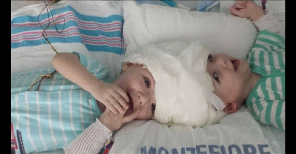 Doctors Told Mom To Abort Conjoined Twins. Today She Showed Them Why She Chose Life