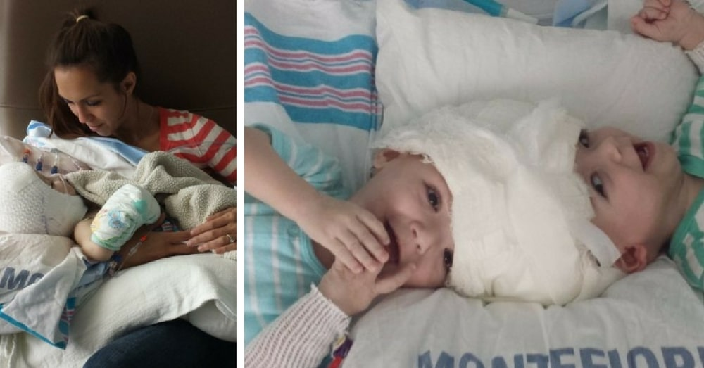 Mom Of Conjoined Twins Finally Has Moment With Babies She's Dreamed Of Since Birth