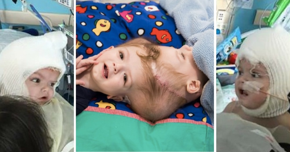 Separated Twins Just Underwent Their Most Difficult Surgery Yet