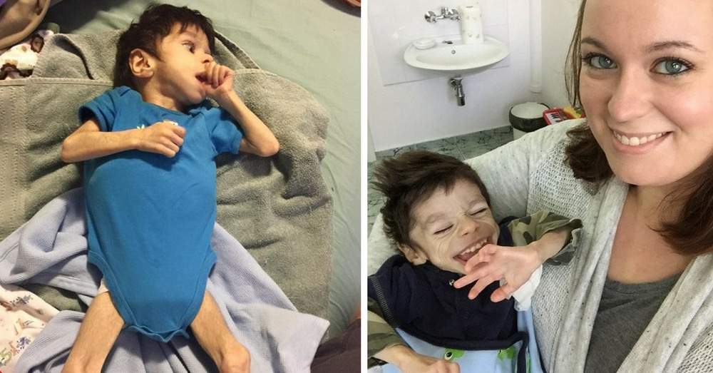 Mom Adopts Special Needs Boy On Brink Of Death. 1 Year Later His Transformation Is Incredible