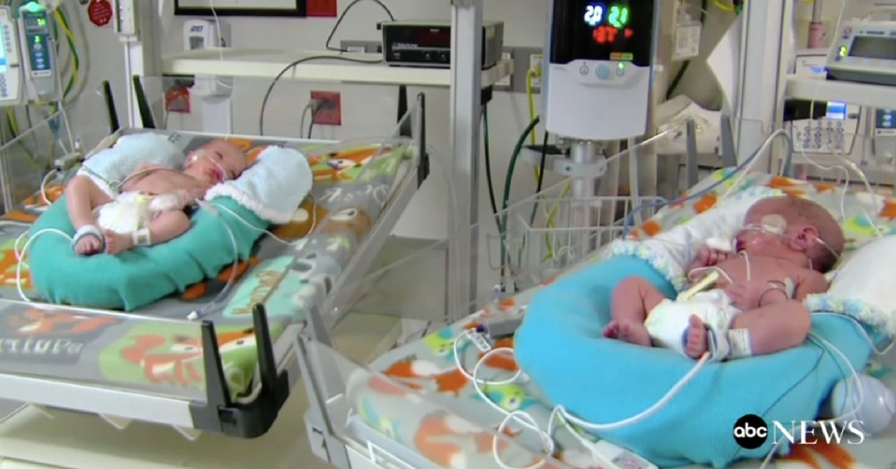 Proud Parents Welcome Twins Born Minutes Apart…But In 2 Separate Years