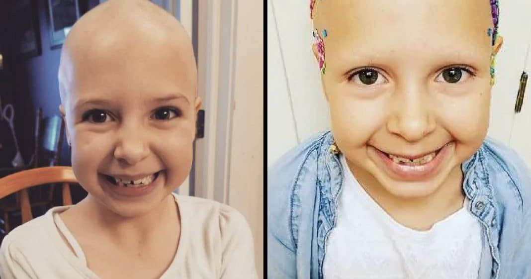 7-Yr-Old Girl With Alopecia Rocks Her School's 'Crazy Hair Day'