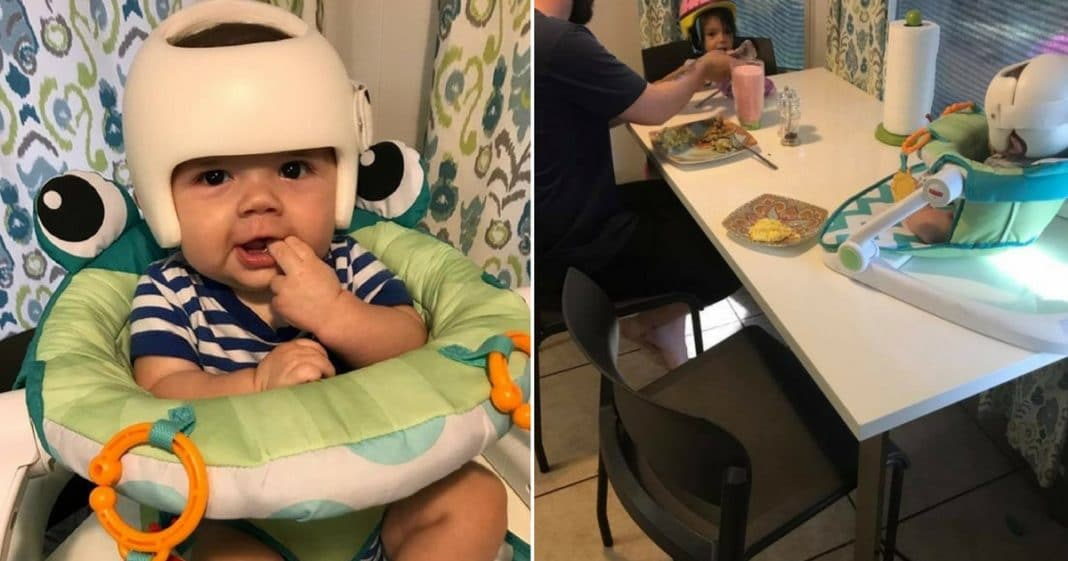 4-Month-Old Has To Wear Head-Shaping Helmet. What Family Does Next Will Melt Your Heart