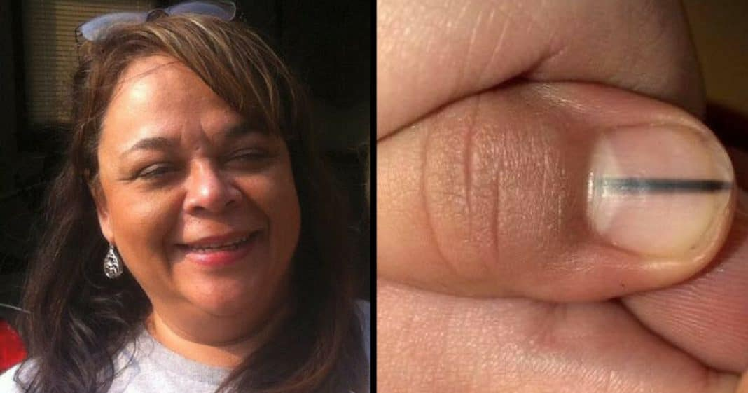 Salon Worker Sees Black Line On Nail, Tells Her To Call Doctor. 3 Days Later Gets The Sad News