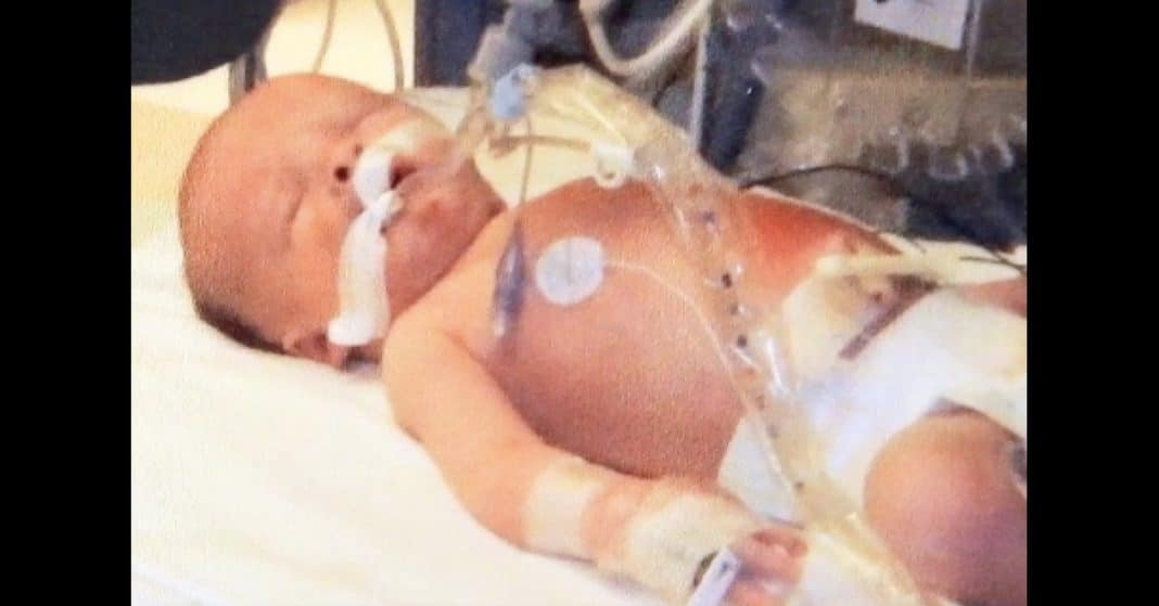 Mom Panics When Baby Born 'Blue And Floppy.' Doctor Knows She Only Has Minutes To Save Him
