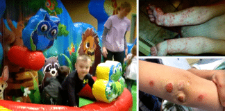 Bouncy House and infections
