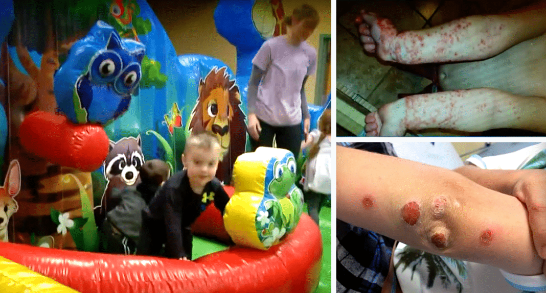 Parents Think Age 10 Son Has Friction Burns From Bounce House, Then Doc Reveals Sick Truth