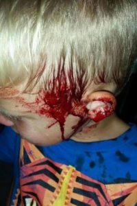 Tyler's face after wrestling the snake away.