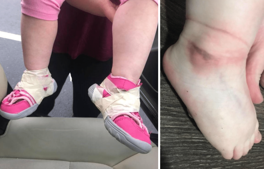 Mom Goes To Daughter's Daycare, Looks Down In Horror When She Sees What Staff Did To Her Feet