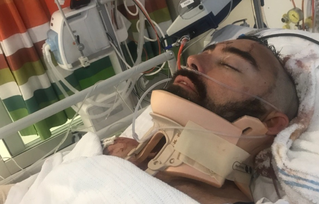 Hero Dad Jumps To Save Age 8 Son Falling From Balcony, Cushioning The Blow With His Own Body
