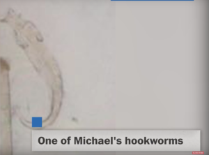One of the hookworms found in Michael's skin via YouTube