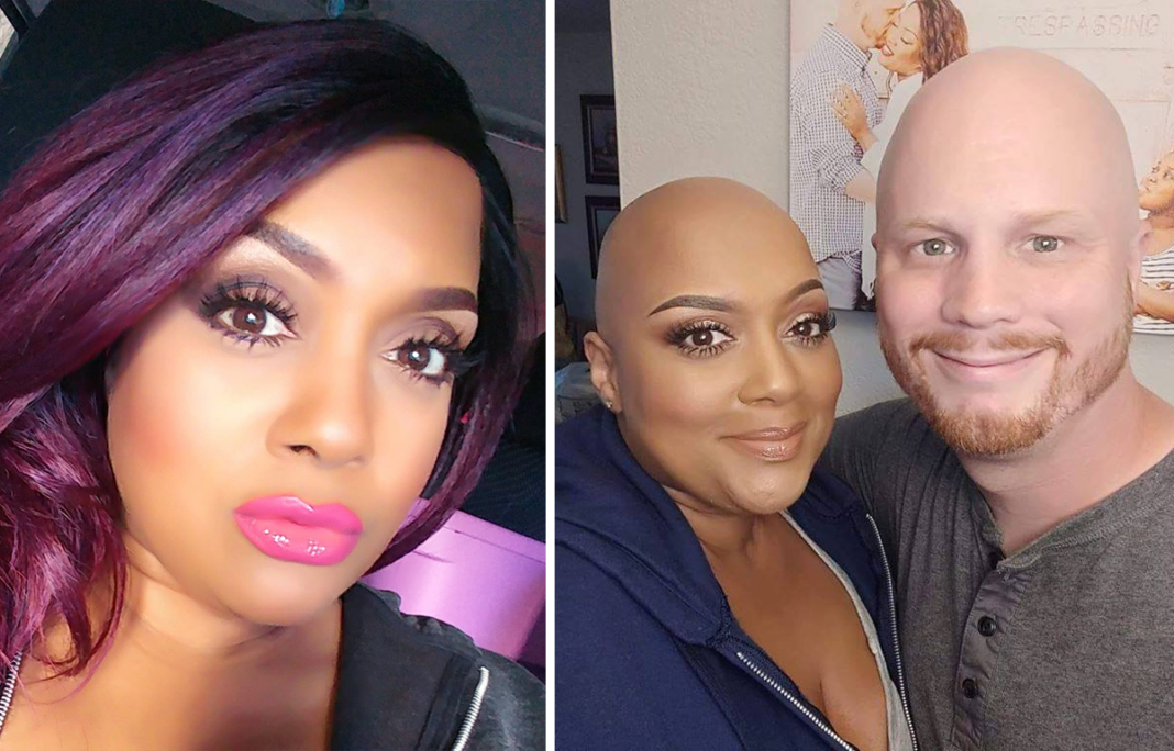 Loving Husband Shares Proud Moment He And Wife With Alopecia Go Out In Public Bald Together