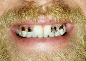 Moore's teeth before the visit to Dr. Wilstead