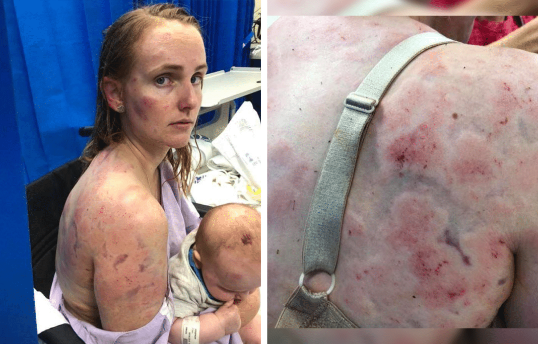 Mom Covered In Bruises Protecting Baby From Storm That Pounded Her With Tennis Ball-Sized Hail