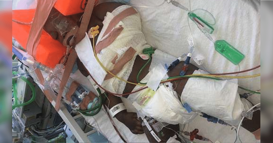 Docs Turn Off Life Support After Baby Falls 40 Ft Out Window, Seconds Later He Breathes On His Own