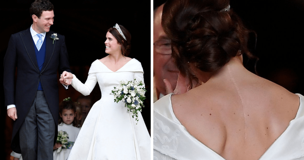 Princess Eugenie Requested Dress That Showed Her Surgery Scars In Royal Wedding