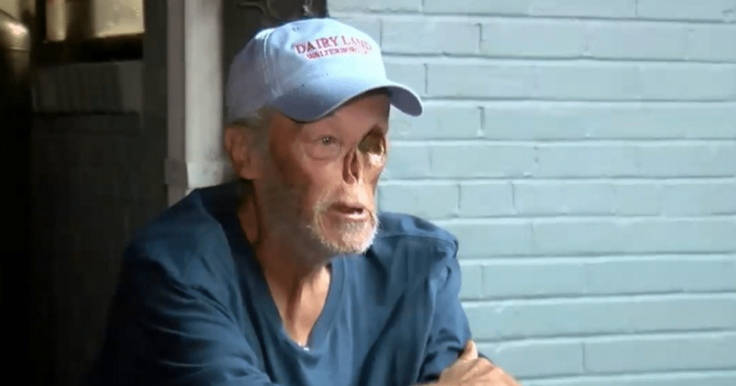 65-Year-Old Cancer Survivor Says He Was Told To Leave Local Gas Station Due To His Disfiguration
