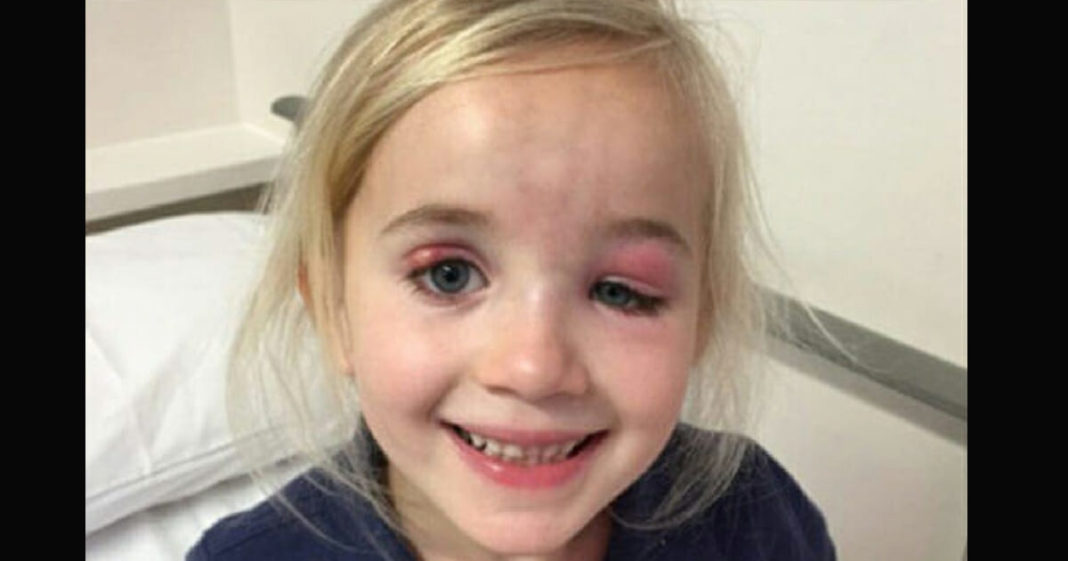 Mom's instinct is much stronger after doctor misdiagnoses age 6 daughter
