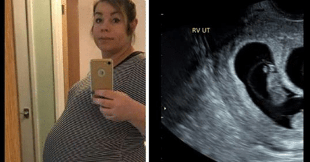 Wife struggles to conceive for 7 long years – when doctor shows her ultrasound she almost faints