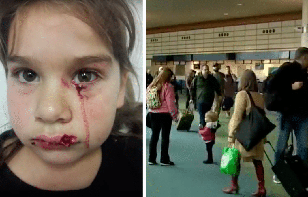 Mom devastated after stranger's 'emotional support' pit bull attacks age 5 daughter's face at airport