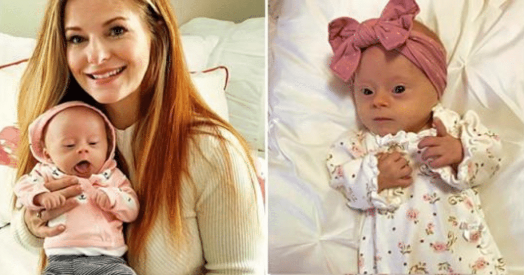 Mom opens up with the truth about what it's like having a child with Down syndrome