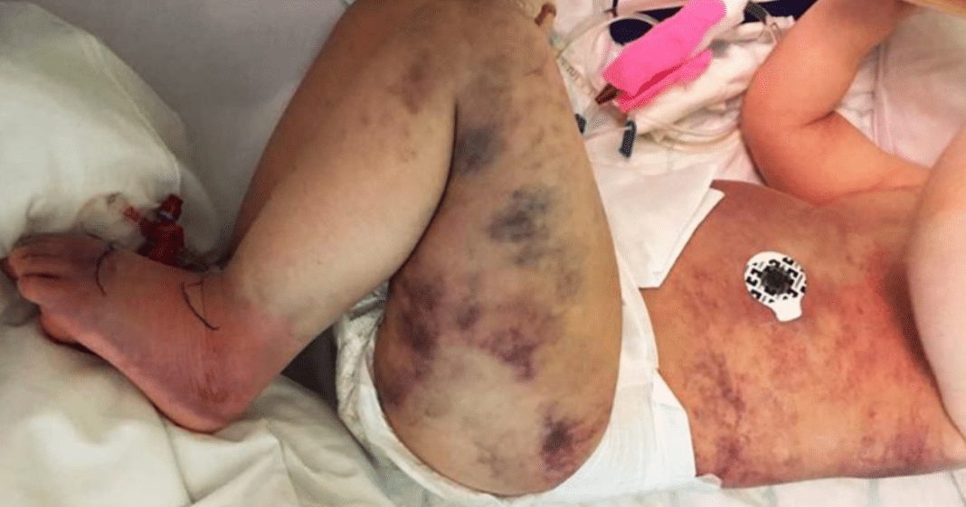 Mom wrongly thinks 3-year-old son got stung by a wasp – then his little body turns blue