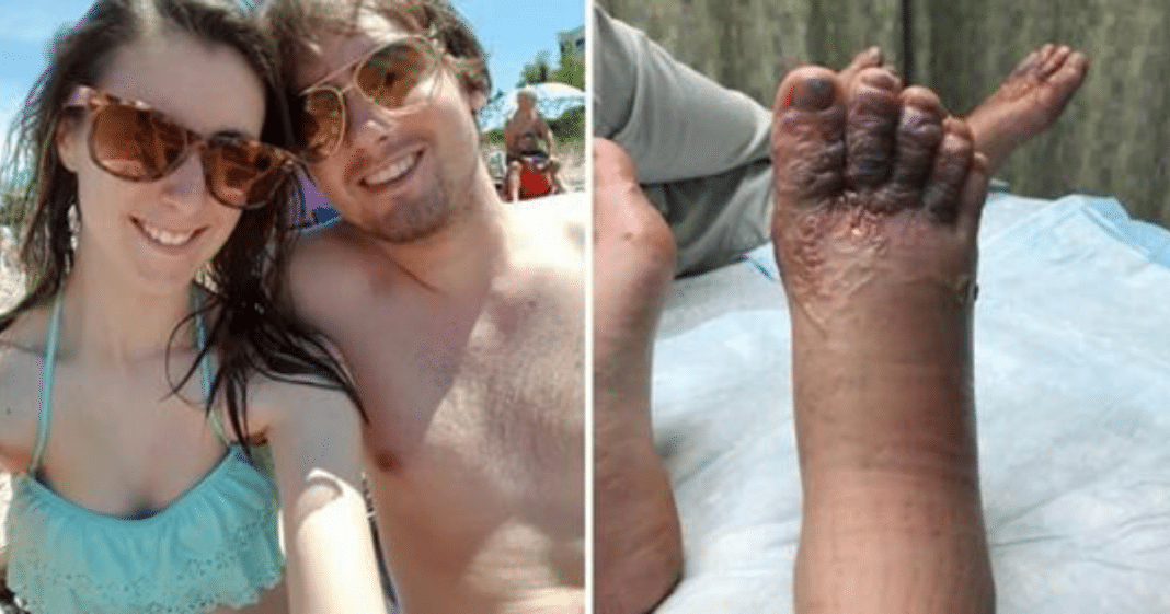 Couple spot something strange on feet after romantic beach stroll, authorities refused to help