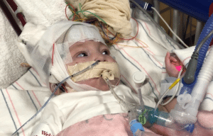 Autumn Fox, 6-month-old, heart transplant, Tallahassee