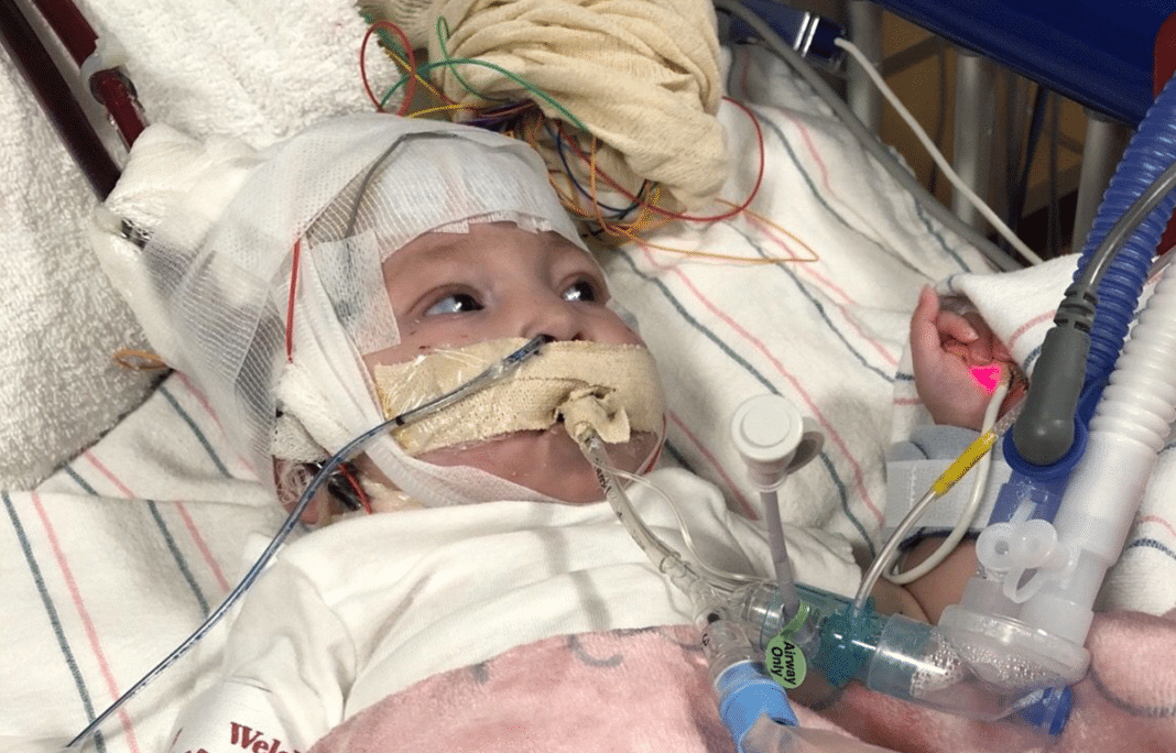Autumn Fox, 6-month-old, heart transplant, Tallahassee