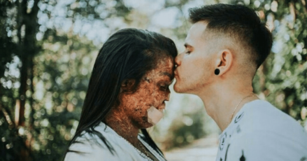 Man gets engaged to a woman with incurable skin disease and inspires millions