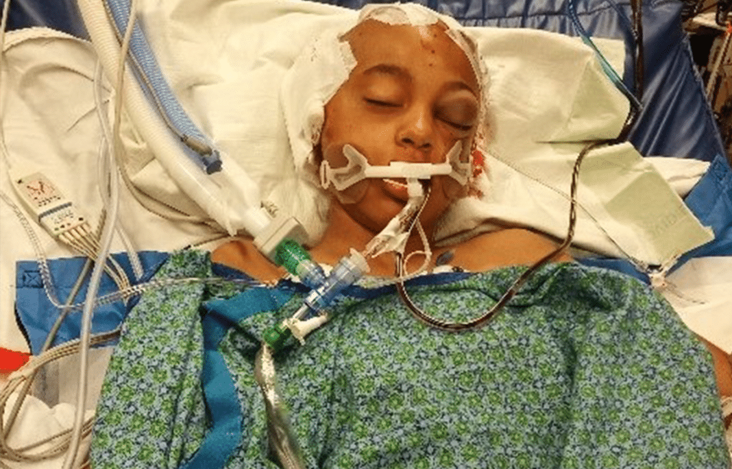 11-year-old left in critical condition after being struck by driver as she got off school bus