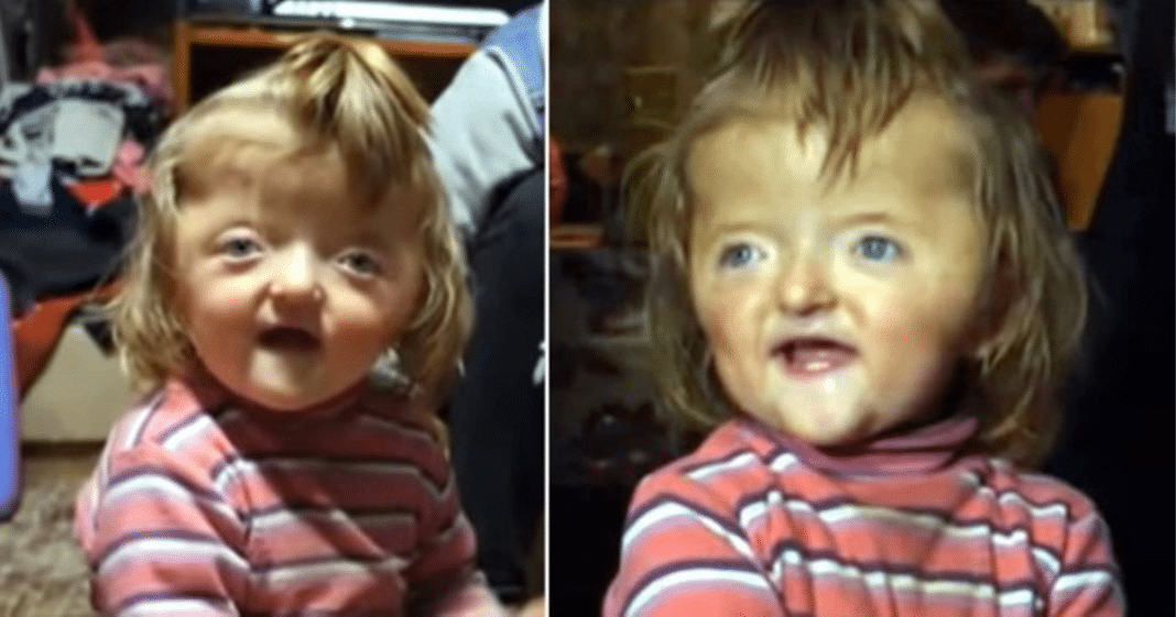 2-year-old banned from nursery because her deformed skull is too scary